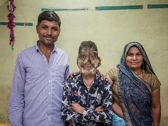 В Индии мальчик из-за болезни стал «оборотнем»