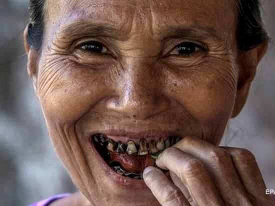 Ученые: проблемы с зубами повышают риск развития рака