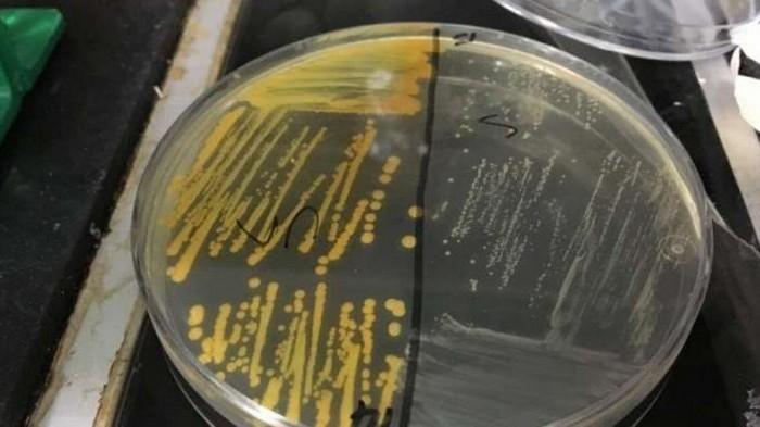 Табачный дым делает бактерии опаснее