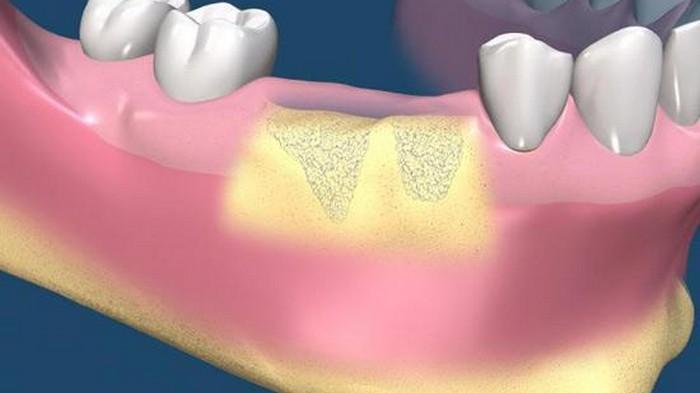 Костная пластика в хирургической стоматологии. Аугментация при отсутствии десны