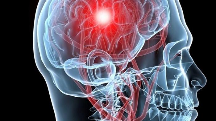 Названы самые действенные способы предотвратить инсульт