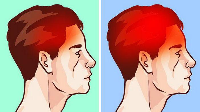 Что такое мигрень и какие причины развития головной боли?