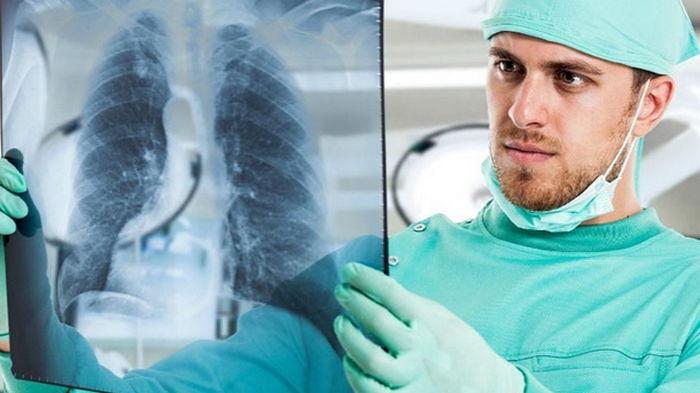 Власти намерены преодолеть эпидемию туберкулеза в Украине до 2030 года