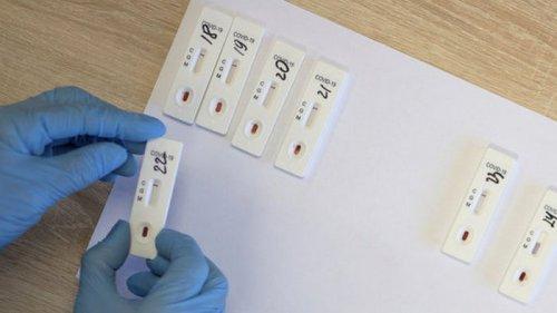 О реальной статистике пандемии: 4 из 5 британцев с ковид-симптомами не делают тест