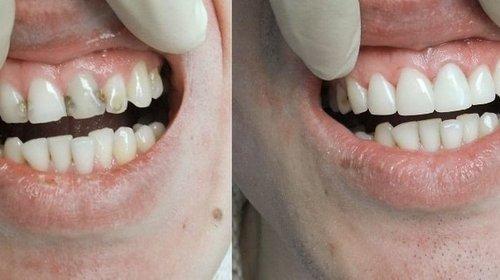 Эстетическая реставрация: восстановление идеальной формы зубов