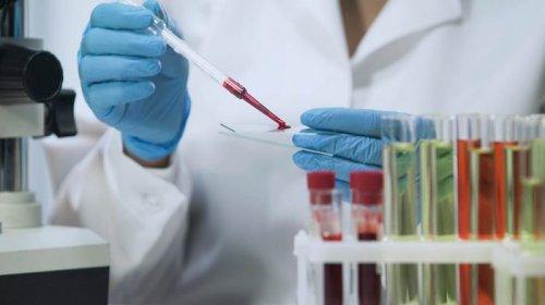 Зачем нужны пренатальные тесты и что они дают?