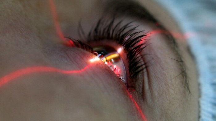 Лазерная коррекция — эффективный способ восстановить зрение