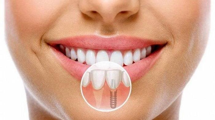 Как происходит имплантация зубов в Киеве в современных реалиях?